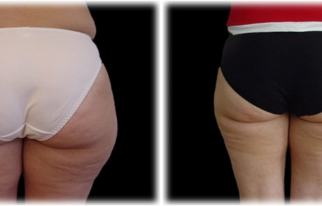 liposuccion-fesses-chirurgie-esthetique-marseille