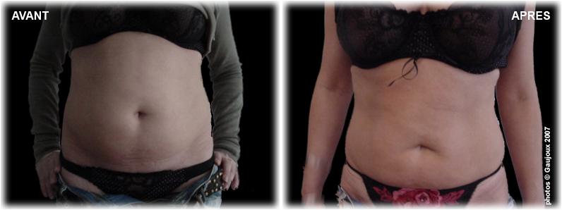 liposuccion-seins-chirurgie-esthetique-istres