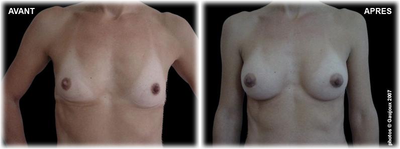 prothese-mammaire-chirurgie-esthetique-face-2