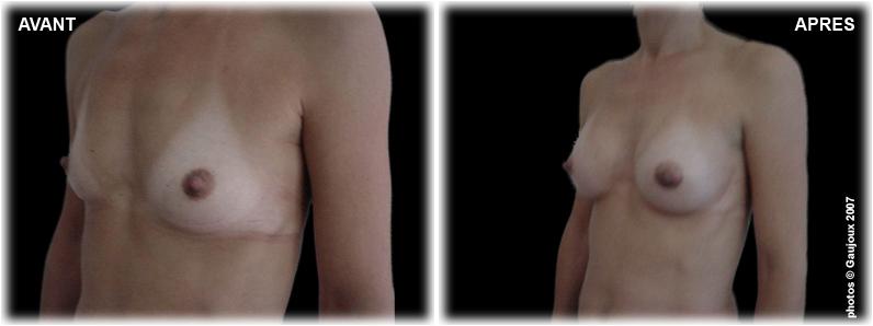 prothese-mammaire-chirurgie-esthetique-istres-profil-2
