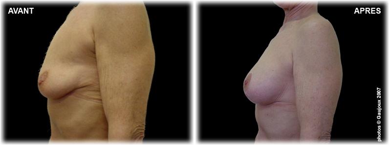 ptose-chirurgie-esthetique-istres-4