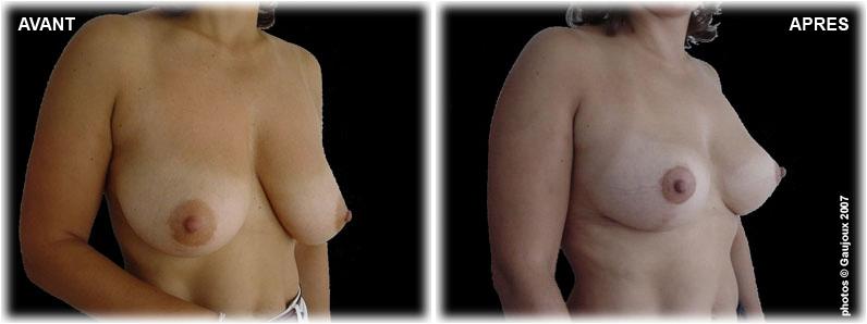 ptose-chirurgie-esthetique-marseille-1