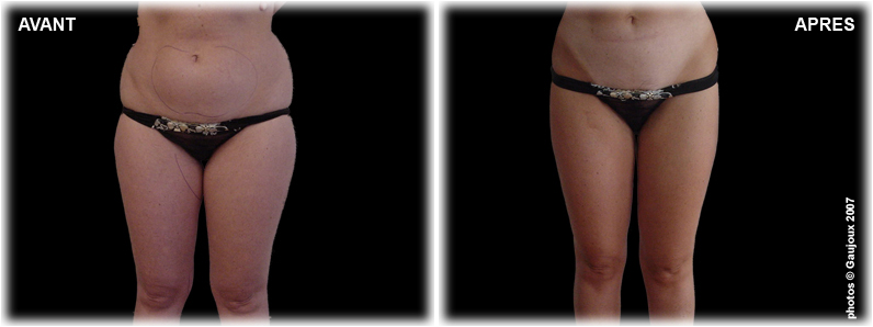 liposuccion-seins-chirurgie-esthetique-marseille